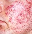 Lugonja Cosmedics acne