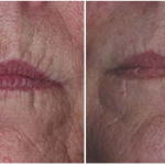 Lugonja Cosmedics e-laser redukcija bora