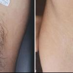 Lugonja Cosmedics e-laser uklanjanje dlaka