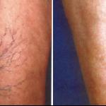 Lugonja Cosmedics e-laser vene
