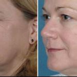 Lugonja Cosmedics e-light zatezanje