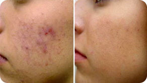 Lugonja Cosmedics akne