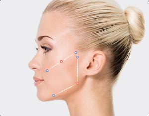 silhouette soft niti polja za tretiranje | Lugonja Cosmedics
