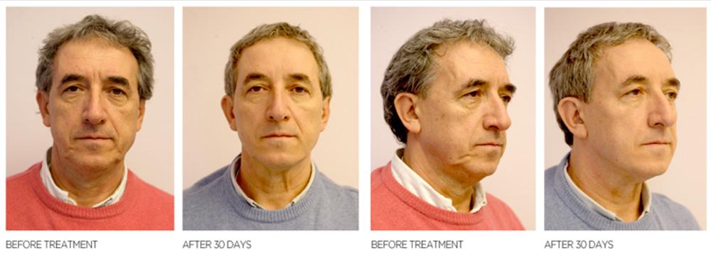 pre i posle tretmana silhouette soft niti | Lugonja Cosmedics