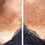 revitalizacija kože dekoltea