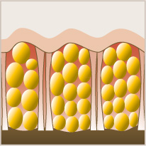 AWT Efekti na epidermis i vezivno tkivo | Pre AWT-a