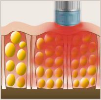 AWT Efekti na epidermis i vezivno tkivo | U toku tretmana