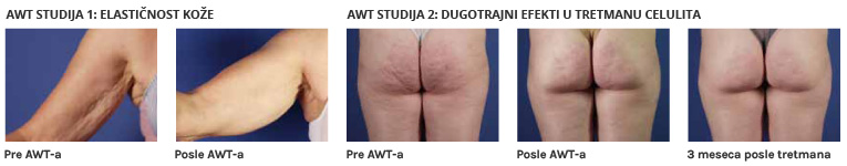 AWT Studija | Pre i posle