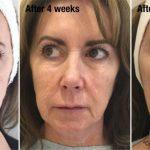 Profhilo tretman | Pre i posle 1